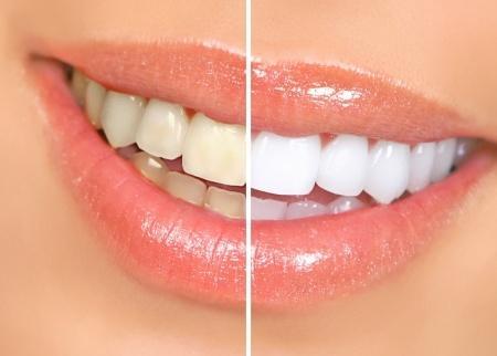 prix de blanchiment des dents au maroc