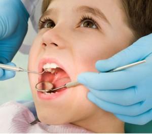 obturer-dent-primaire-dent-lait