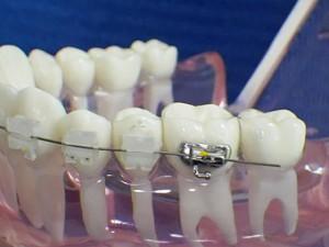 conseil-orthodontie-rabat-agdal-maroc