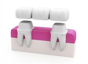 couronne-dentaire-pont-fixe-facette-dentaire